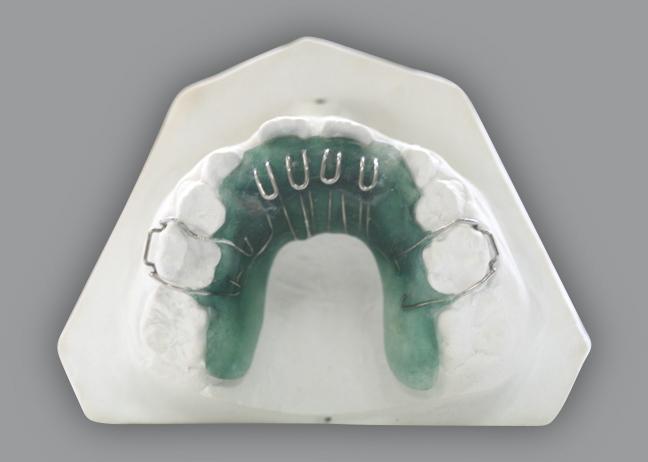 làm răng giả bằng Implant uy tín