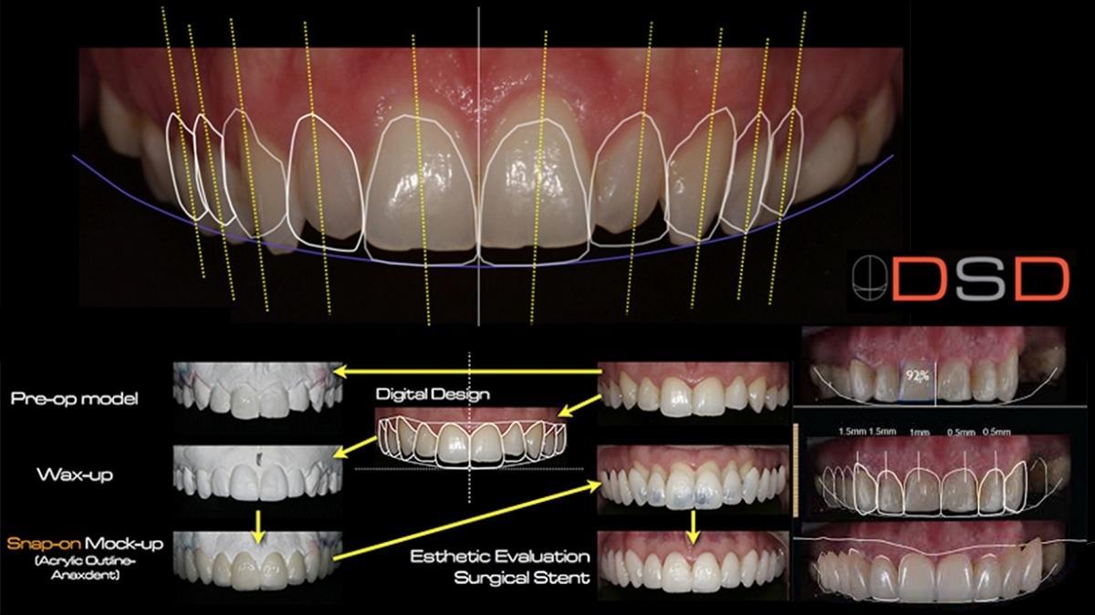 trồng răng implantlàm răng giả bằng Implant uy tín