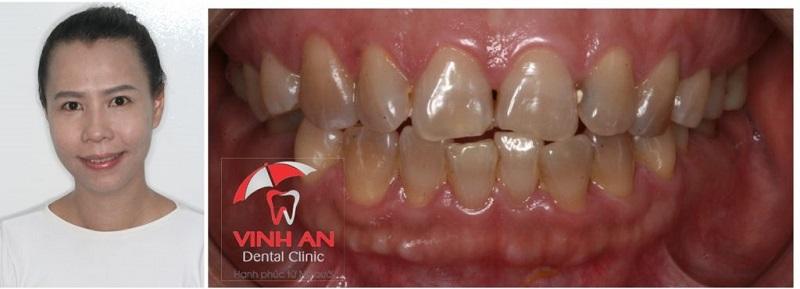 Hình ảnh khách hàng sau khi bọc răng sứ