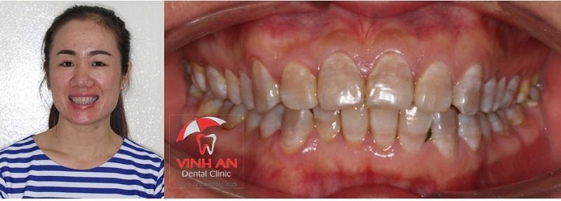 Hình ảnh khách hàng trước khi bọc răng sứ