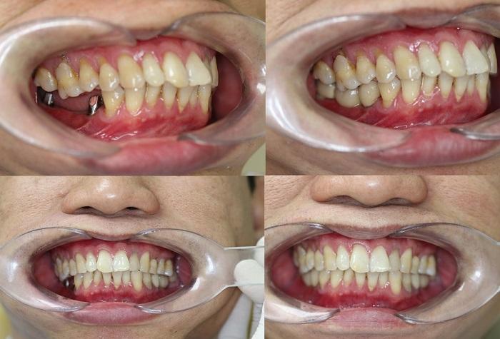 hình ảnh khách hàng cấy răng implant tại nha khoa Vinh An