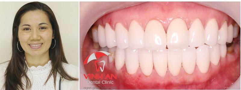 hình ảnh trồng răng sứ nha khoa Vinh An