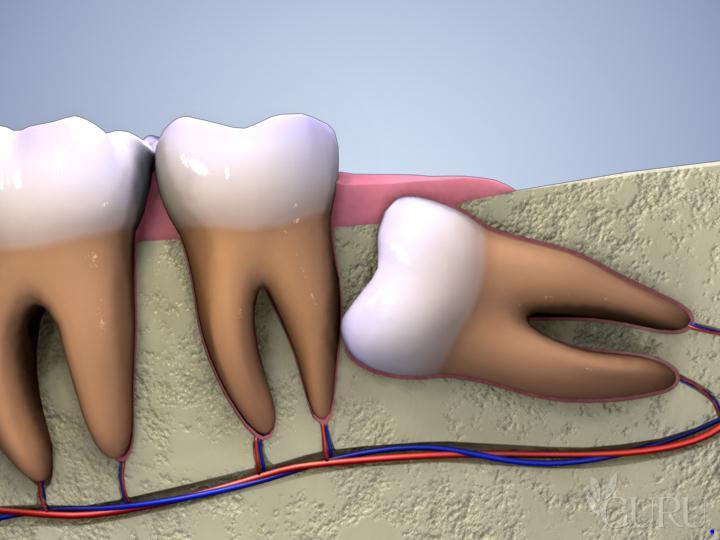 Phương pháp làm răng giả