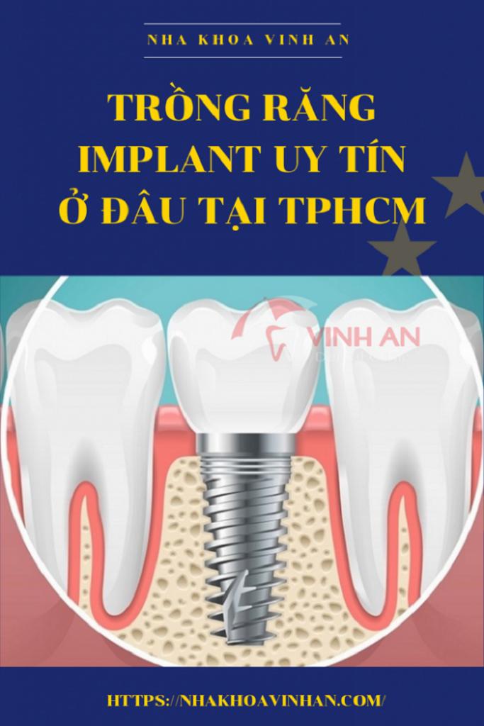 Chăm sóc răng miệng sau khi cấy ghép implant