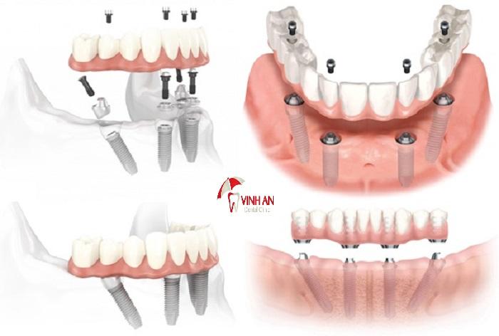 Trồng răng implant giá rẻ uy tín tại TpHCM