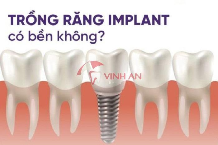 Cấy ghép implant giá rẻ cho người già có được không?