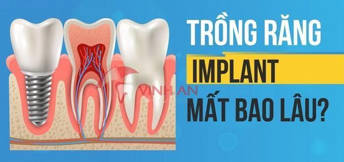 Cắm ghép implant có đau về sau không ? Ai nên trồng răng implant