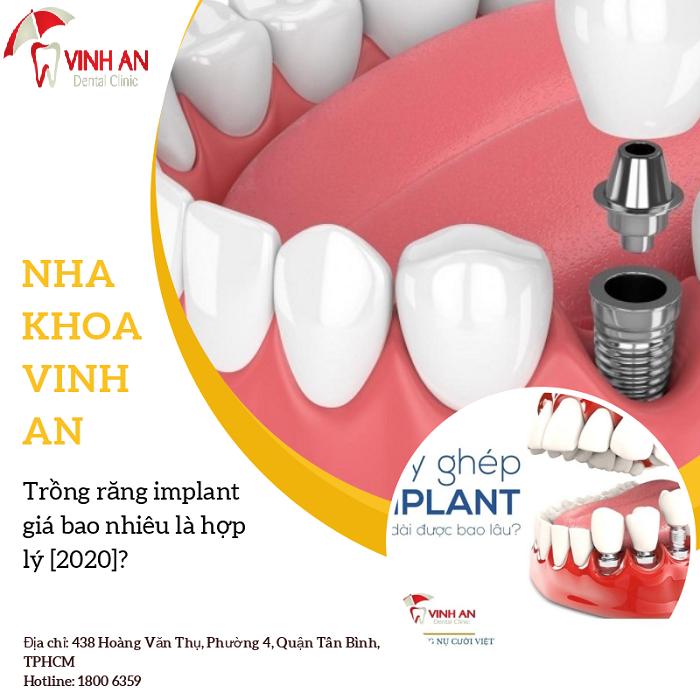 Trồng răng bằng implant được thực hiện cần điều kiện gì?