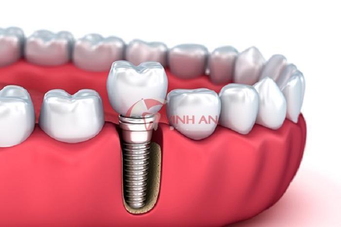Trồng răng Implant thế nào cho an toàn và thẩm mỹ