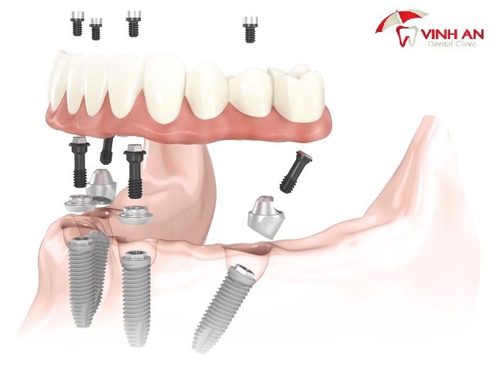 trồng răng bằng phương pháp implant có đau không