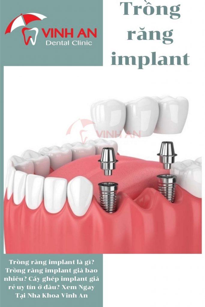 Răng Implant tồn tại lâu nhất phụ thuộc vào yếu tố nào?
