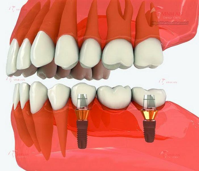 Kinh nghiệm cấy răng Implant bạn cần biết