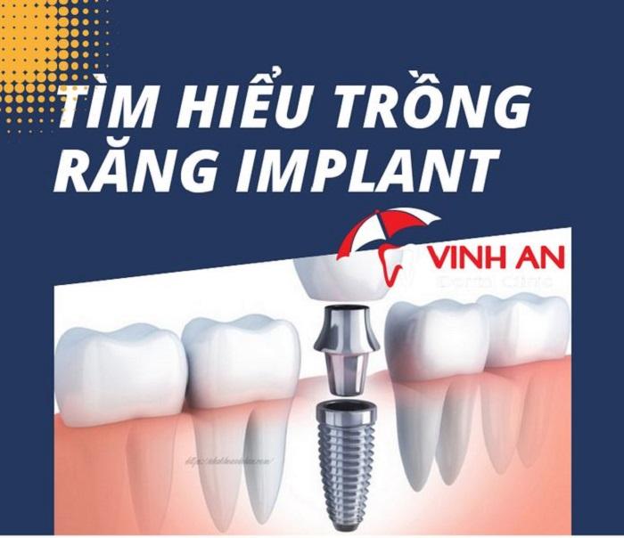 Lưu ý khi trồng implant bạn cần tuân theo?