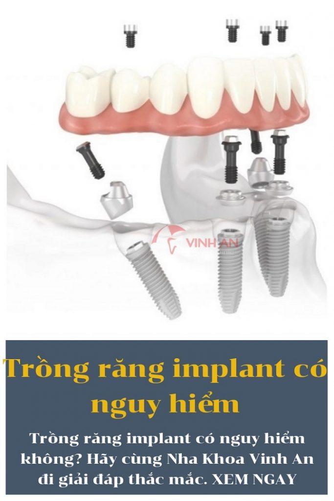 Trồng răng Implant có nguy hiểm không là câu hỏi của nhiều người hiện nay.