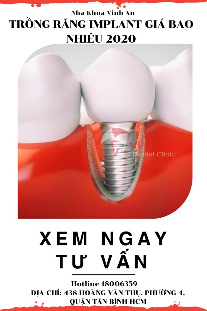 Trồng răng implant giá bao nhiêu