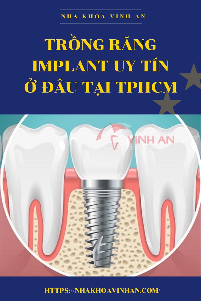 Trồng răng bằng phương pháp implant uy tín ở đâu tốt tại TpHCM?