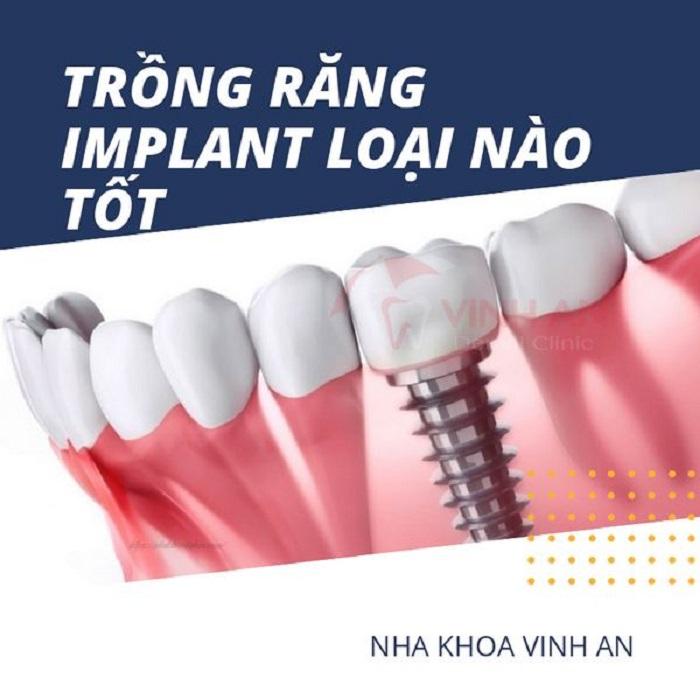 Trồng răng implant uy tín giá rẻ loại nào tốt nhất hiện nay?