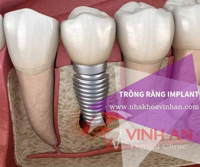 Ưu điểm của phương pháp trồng răng implant so với các phương pháp khác
