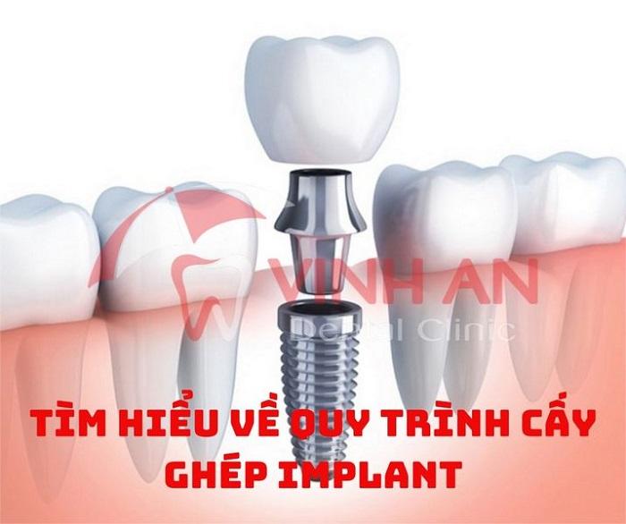 Tìm hiểu về quy trình cấy ghép răng Implant