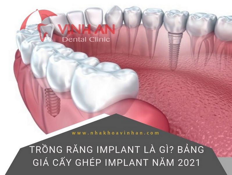 trồng răng implant VinhAn