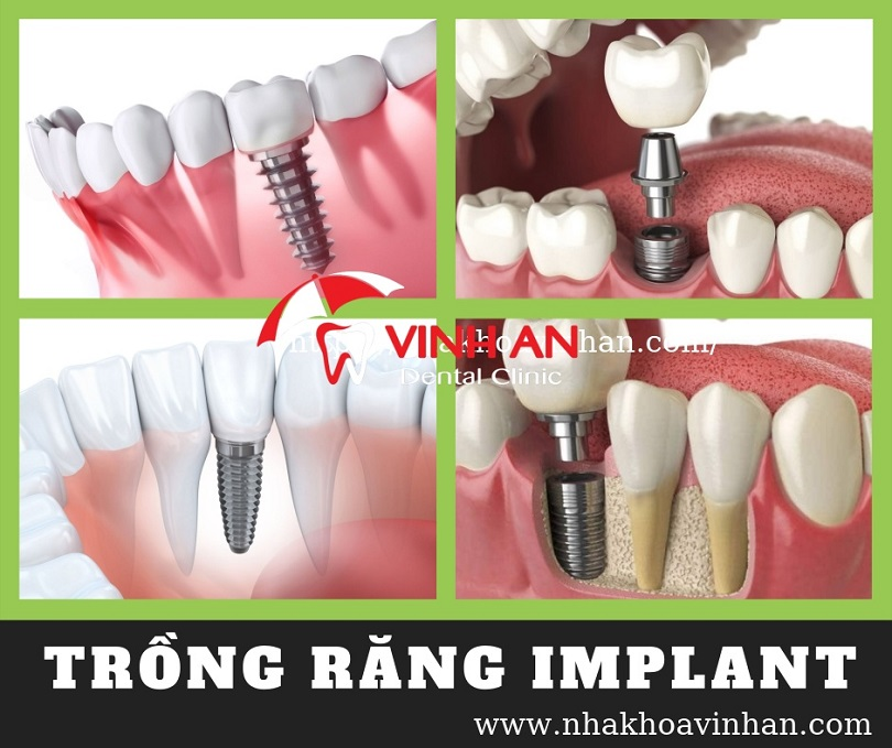 Trồng răng Implant là một trong những phương pháp trồng răng giả cố định bằng công nghệ sinh học - ghép mô nhân tạo