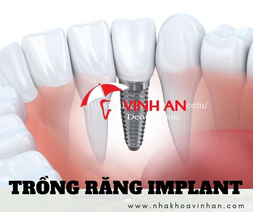 Trồng răng implant giá bao nhiêu là hợp lý [2021]?