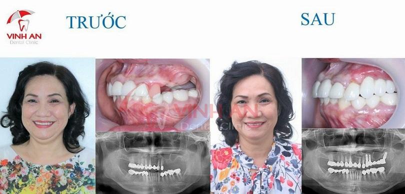 Chi phí trồng răng Implant cao hơn bọc sứ hay đeo hàm tháo lắp, nhưng độ bền có thể duy trì vĩnh viễn.