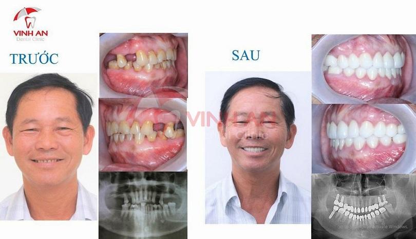 Trồng răng implant giải pháp tốt nhất cho người mất răng