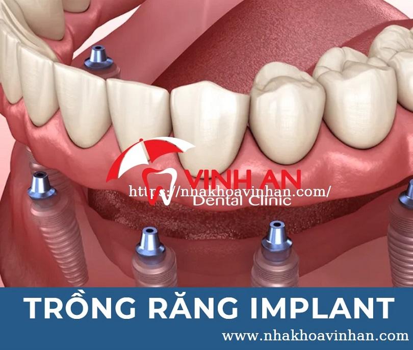 Trồng răng implant là gì? Bảng giá trồng răng implant bao nhiêu là hợp lý 2021?