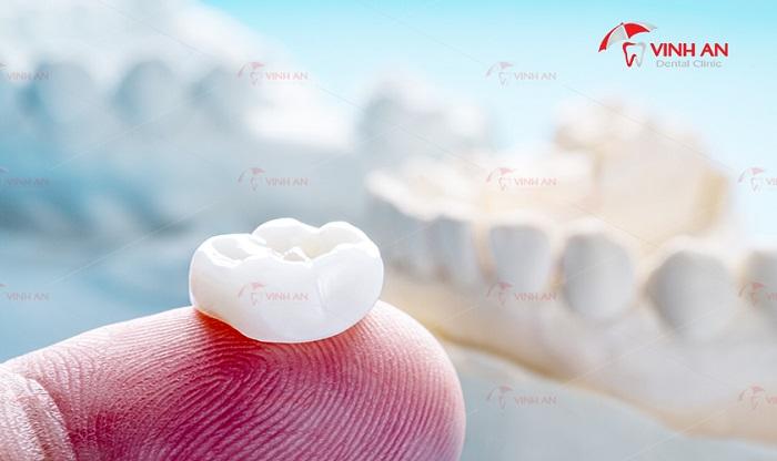 Trồng răng sứ loại nào tốt nhất trên thị trường?