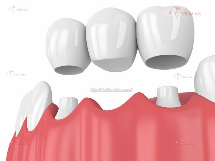 Trồng răng sứ vĩnh viễn bằng cầu răng sứ