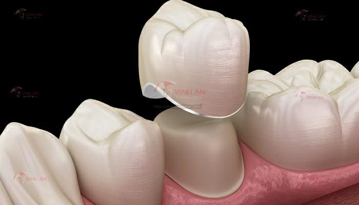 Mão răng sứ hoàn toàn bằng sứ