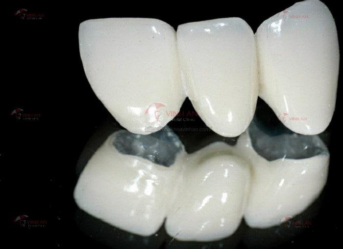Mão răng sứ làm bằng kim loại