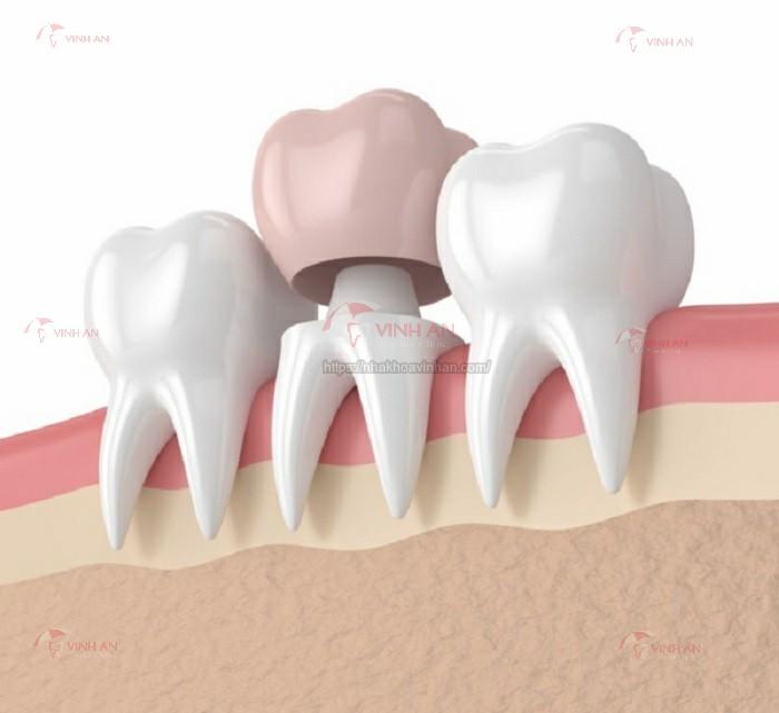 Trồng răng sứ cho răng hàm nên chọn loại nào tốt?