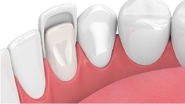 phương pháp làm răng thẩm mỹ