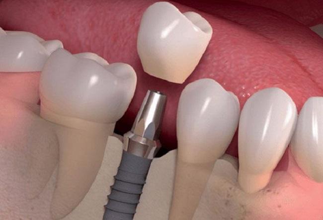 Bị tiểu đường có trồng răng được không