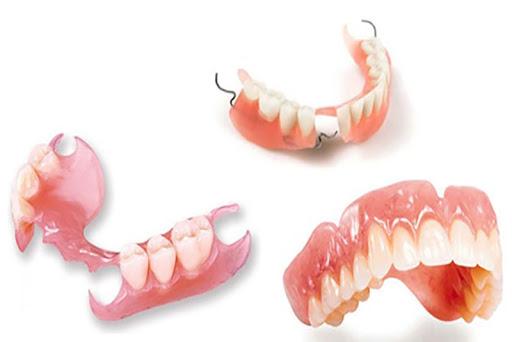 Các loại hàm răng tháo lắp