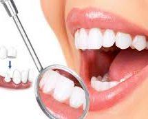 các loại răng sứ được sử dụng hiện nay