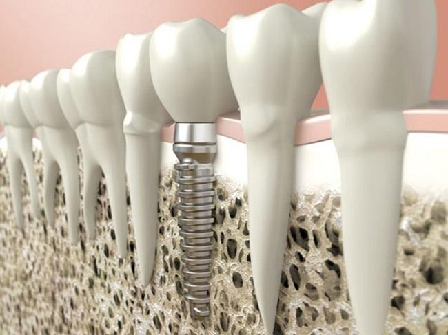 Những thông tin cần biết về cấy ghép răng