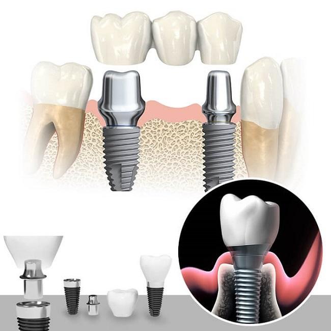 trồng răng mini implant có quy trình thế nào?