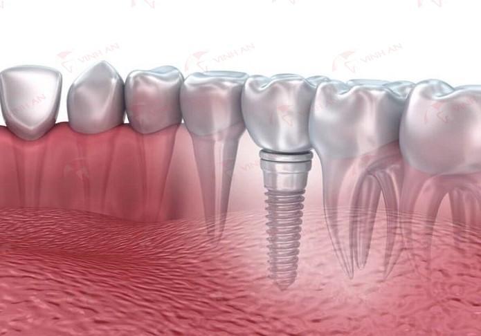 Cấy ghép răng implant mất bao nhiêu tiền và mất bao lâu?