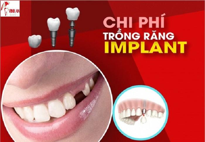 Làm răng cấy ghép implant giá bao nhiêu tiền