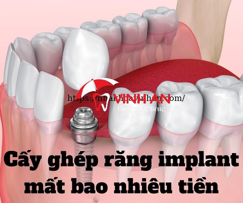 Cấy ghép răng implant mất bao nhiêu tiền 2021