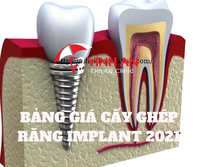 Cấy ghép implant giá bao nhiêu 2021