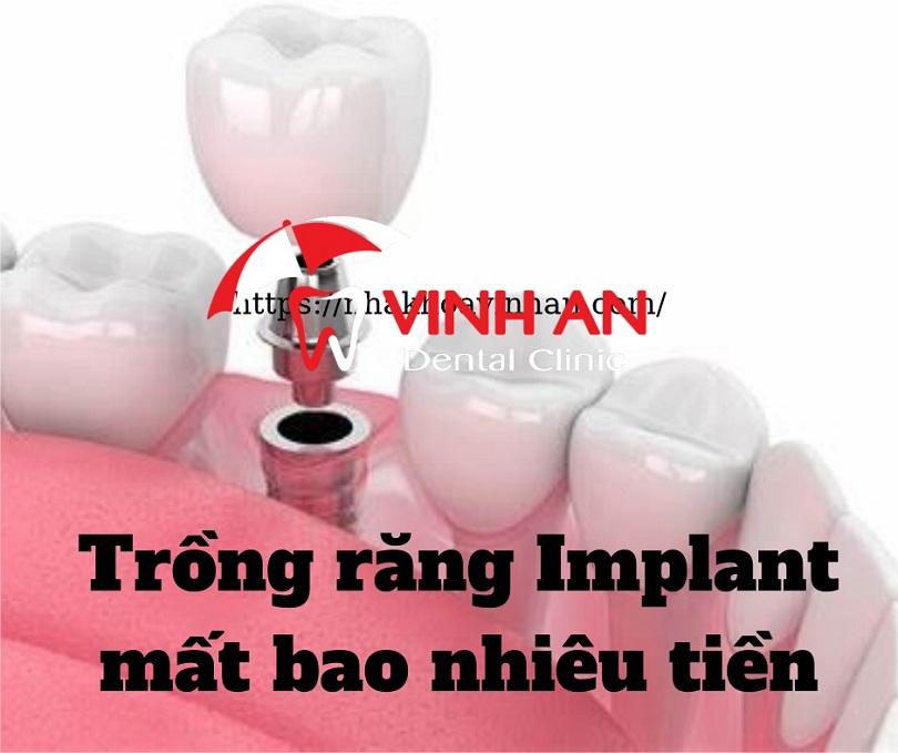 Làm răng cấy ghép implant giá bao nhiêu tiền?