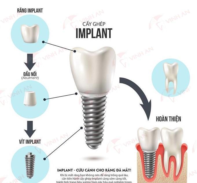 Cấy ghép răng giả bằng 3 phương pháp trồng răng hiện nay