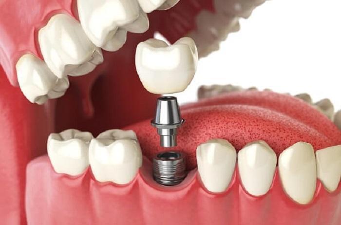 Cấy ghép răng implant mất bao nhiêu tiền