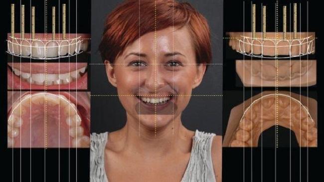 Ưu điểm đem lại từ Công nghệ Răng sứ smile design