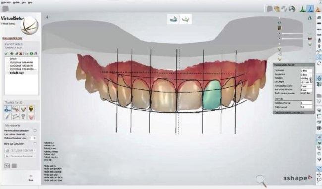 Công nghệ Răng sứ smile design