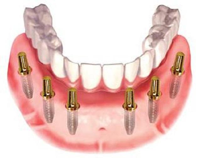 Răng giả tháo lắp trên trụ Implant